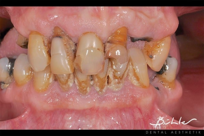 Angebot bühler dental aesthetik zürich